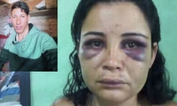 Lina Andrea Aguirre, la mujer golpeada salvajemente por su expareja Pedro Rojas.