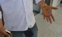 El periodista Heyner Escobar resultó agredido con un huevo.