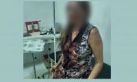 Elizabeth Montealegre Hernández fue la mujer brutalmente agredida.