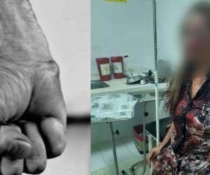 La mujer presenta varias lesiones en su cuerpo.
