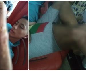 Keiner Manuel Araujo es el hijo de la mujer, quien padece una enfermedad huérfana.